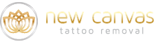 Calgary Tattoo Removal