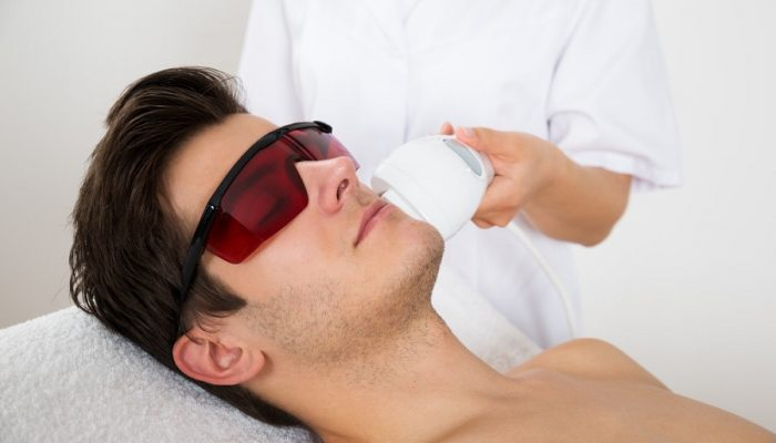 mens-laser-hair-removal-calgary
